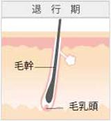 広島のレーザー脱毛イメージ2